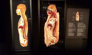 肥満の人(136kg)の断面図(右)